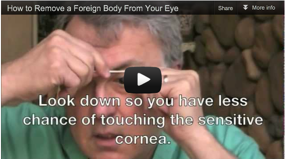 "Still shot of the video ""How to Get Something Out of Your Eye."""
