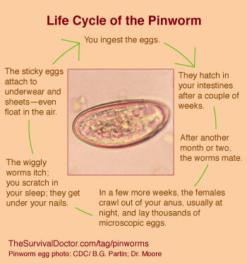 How to Treat Pinworms: Your Most Common Questions Answered | The Survival Doctor